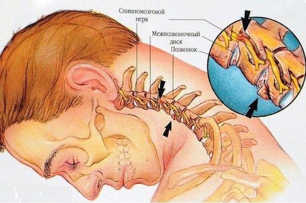 vosem uprajnenii protiv sheinogo osteohondroza Восемь упражнений против шейного остеохондроза
