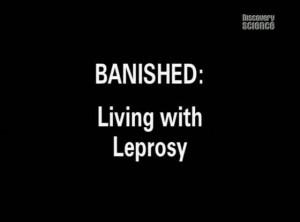 discoverybanished 300x222 Изгои. Жизнь прокажённых (Banished: Living with Leprosy)